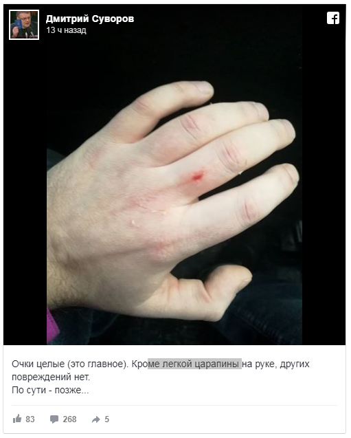 Дмитрий Суворов: «Меня били ногами по лицу, одна нога была женская»